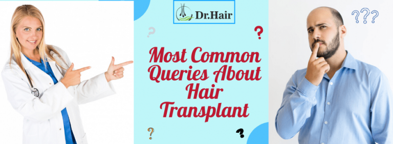 Most Common Queries About Hair Transplant