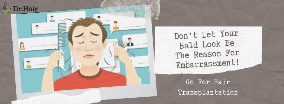 Don't Let Your Bald Look Be The Reason For Embarrassment! Go For Hair Transplantation