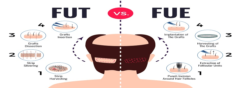 Among FUT and FUE- Which Is the Best Hair Transplant Technique?