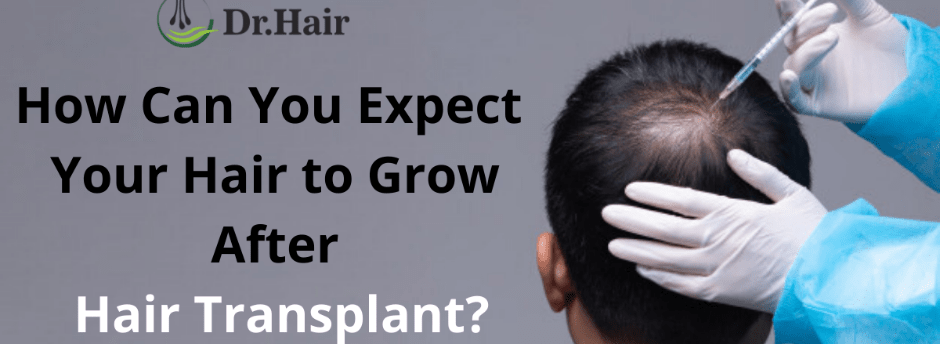 How Can You Expect Your Hair to Grow After Hair Transplant?
