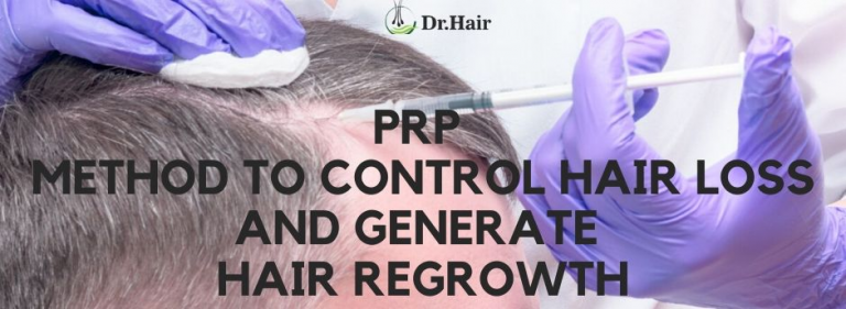 PRP Method to Control Hair Loss and Generate Hair Regrowth