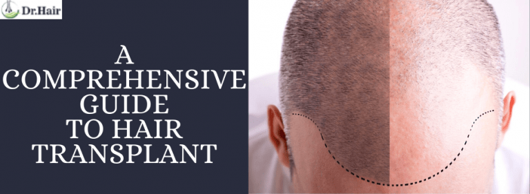 A Comprehensive Guide to Hair Transplant